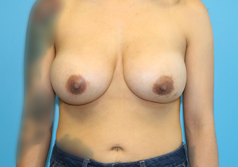 Breast Augmentation Surgery Raleigh After Front