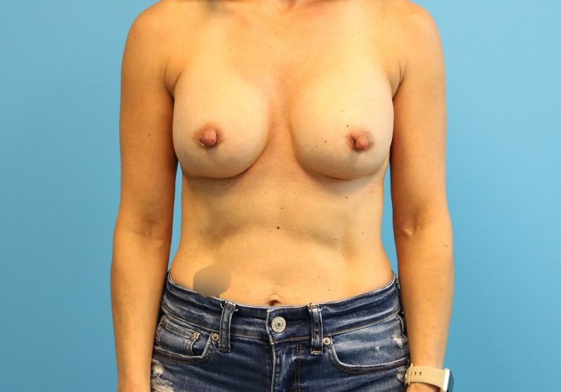 Raleigh breast implant revision surgery -After Procedure Profile