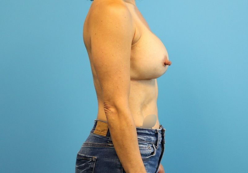 Raleigh implant breast revision surgery -After Procedure Front
