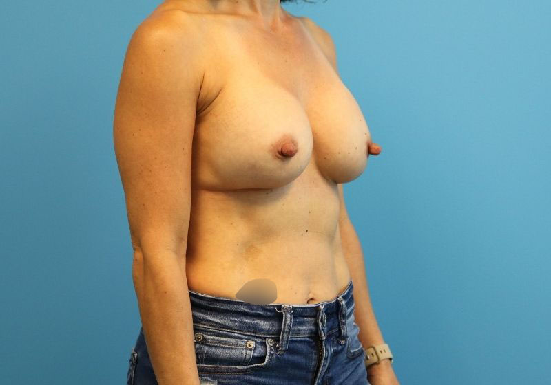 Raleigh implant breast revision surgery -After Procedure Side