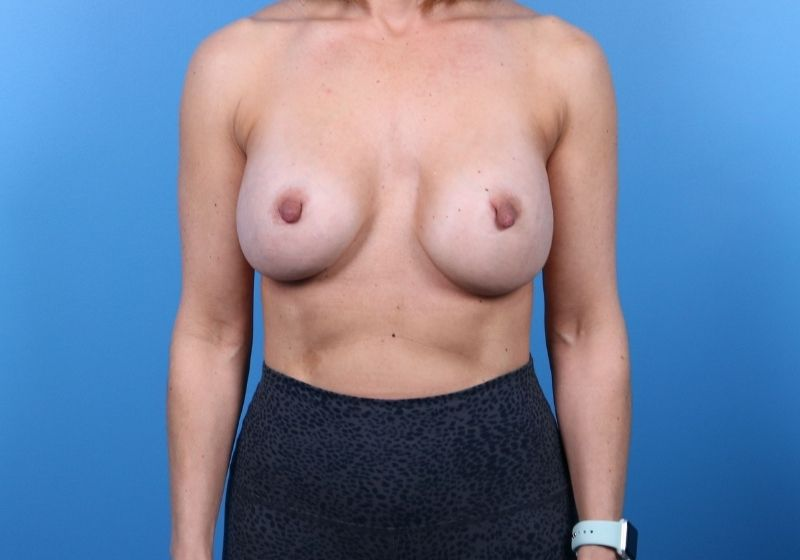 Raleigh breast Implant revision surgery -Before Procedure Front