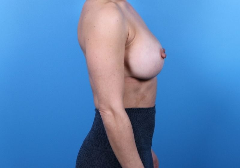 Raleigh breast implant revision surgery -Before Procedure Profile