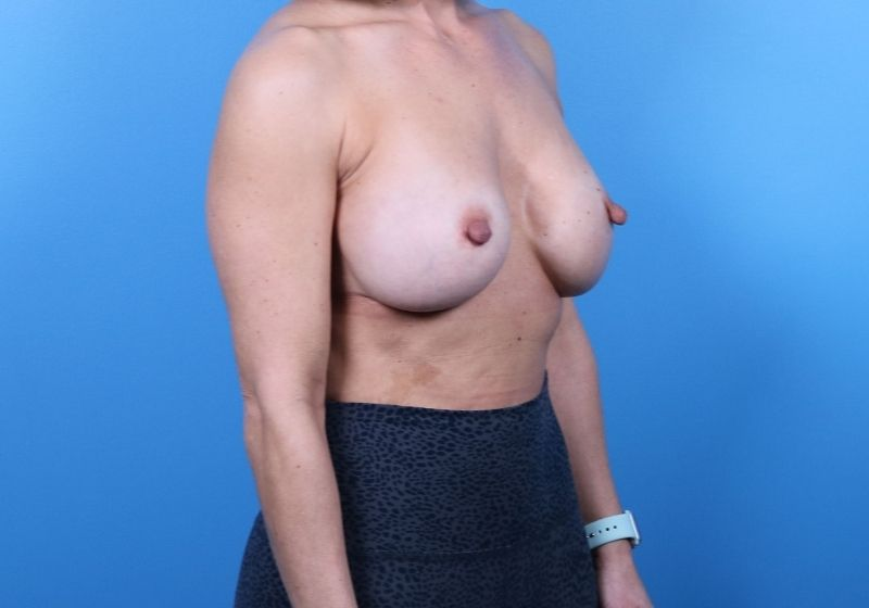 Raleigh breast Implant revision surgery -Before Procedure Side