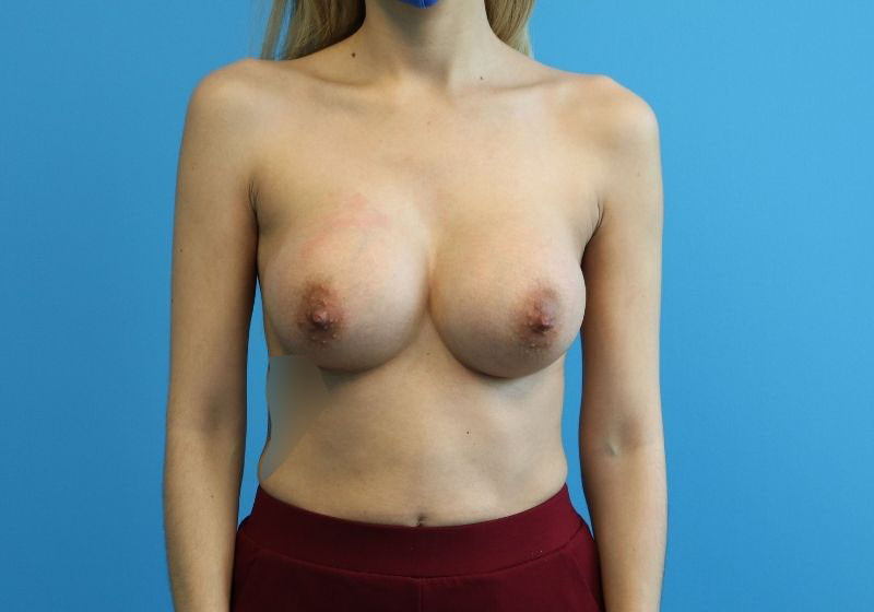 Breast Augmentation Raleigh after surgery front