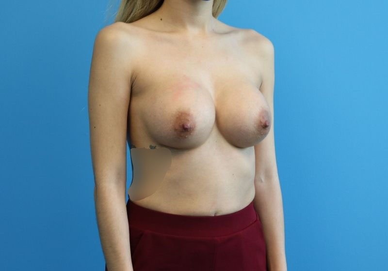 Breast Augmentation Raleigh after surgery- side