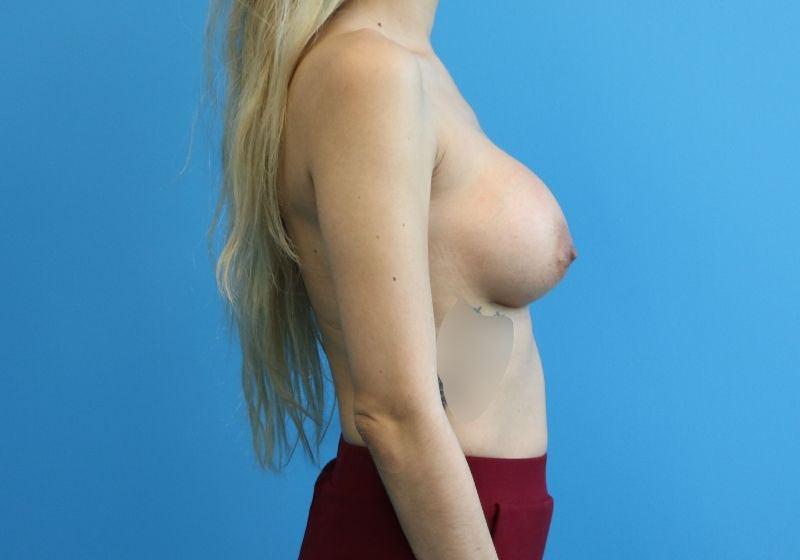 Breast Augmentation Raleigh Before - sideBreast Augmentation Raleigh after surgery - profile