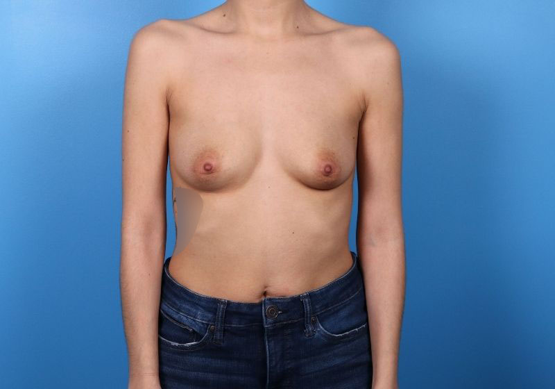 Breast Augmentation Raleigh Before surgery front