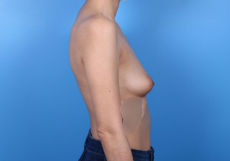 Breast Augmentation Raleigh Before - side