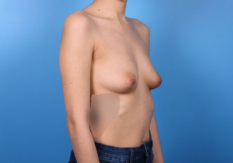 Breast Augmentation Raleigh Before - profile