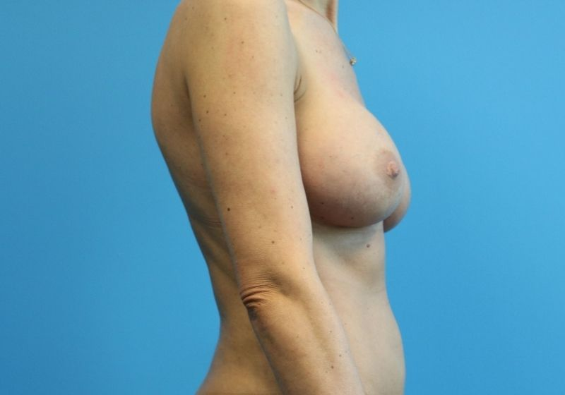 Raleigh Breast implant replacement surgery