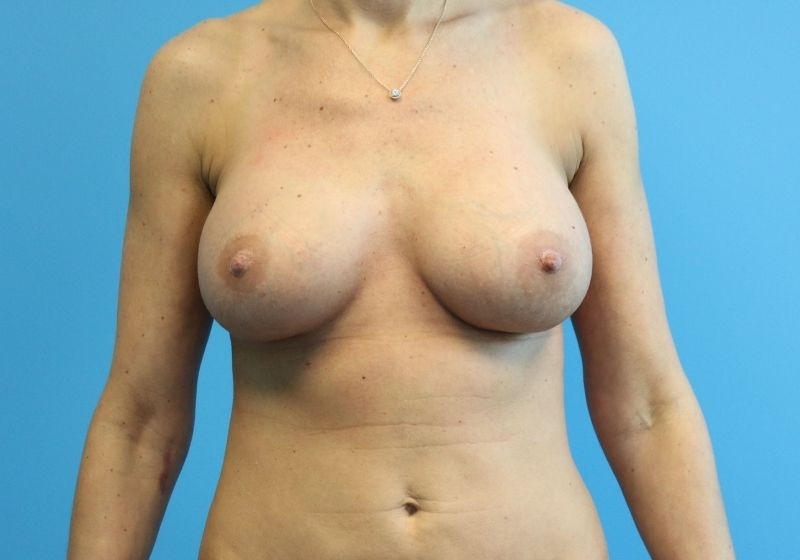 Raleigh Breast Implant Revision Surgery After Procedure