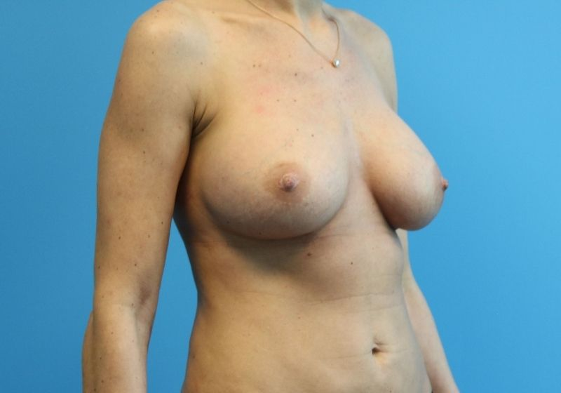 Breast Implant Revision Surgery Raleigh After Procedure
