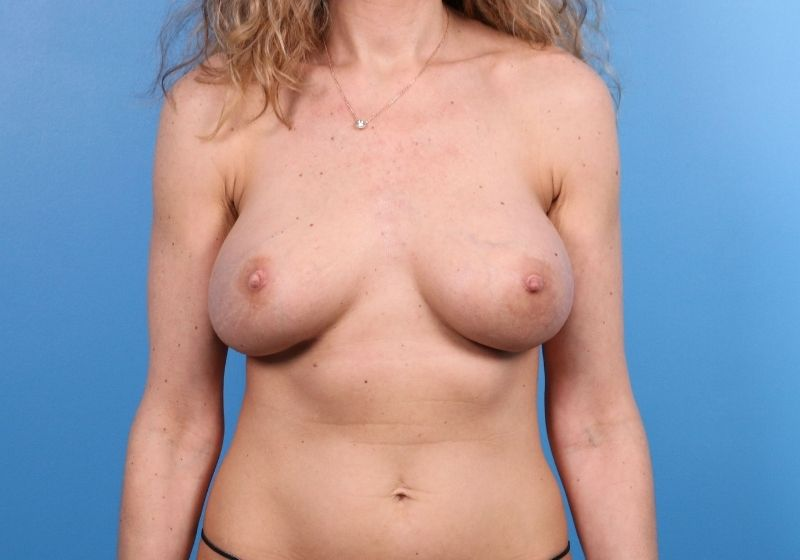 Breast Implant Revision Surgery Raleigh Before Procedure
