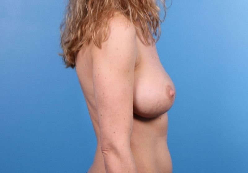 Raleigh Breast Implant revision surgery side