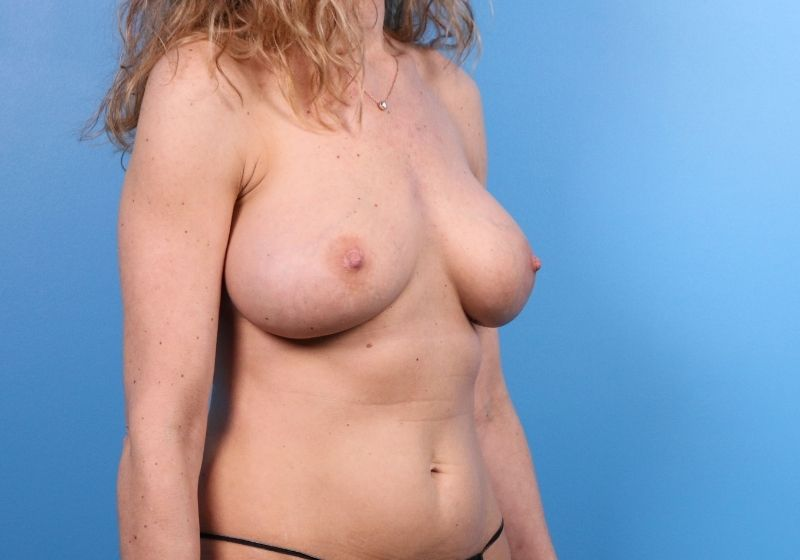 Breast Implant Revision Surgery Raleigh Before Procedure front