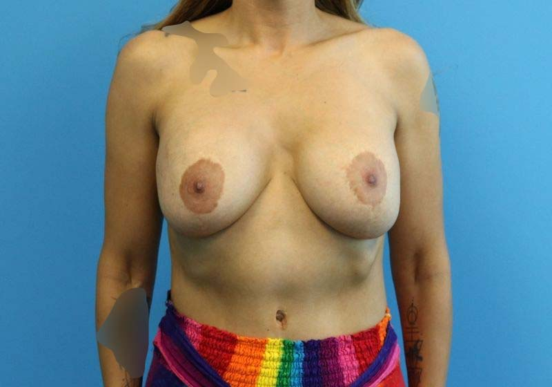 Raleigh Breast Lift with Augmentation before Front