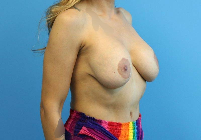 Raleigh Breast Lift with Augmentation before side