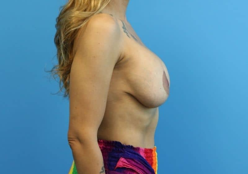 Raleigh Breast Lift with Augmentation before profile