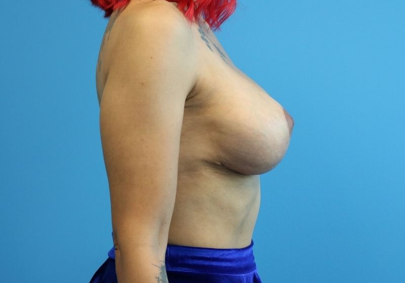 Raleigh Breast Lift with Augmentation after side